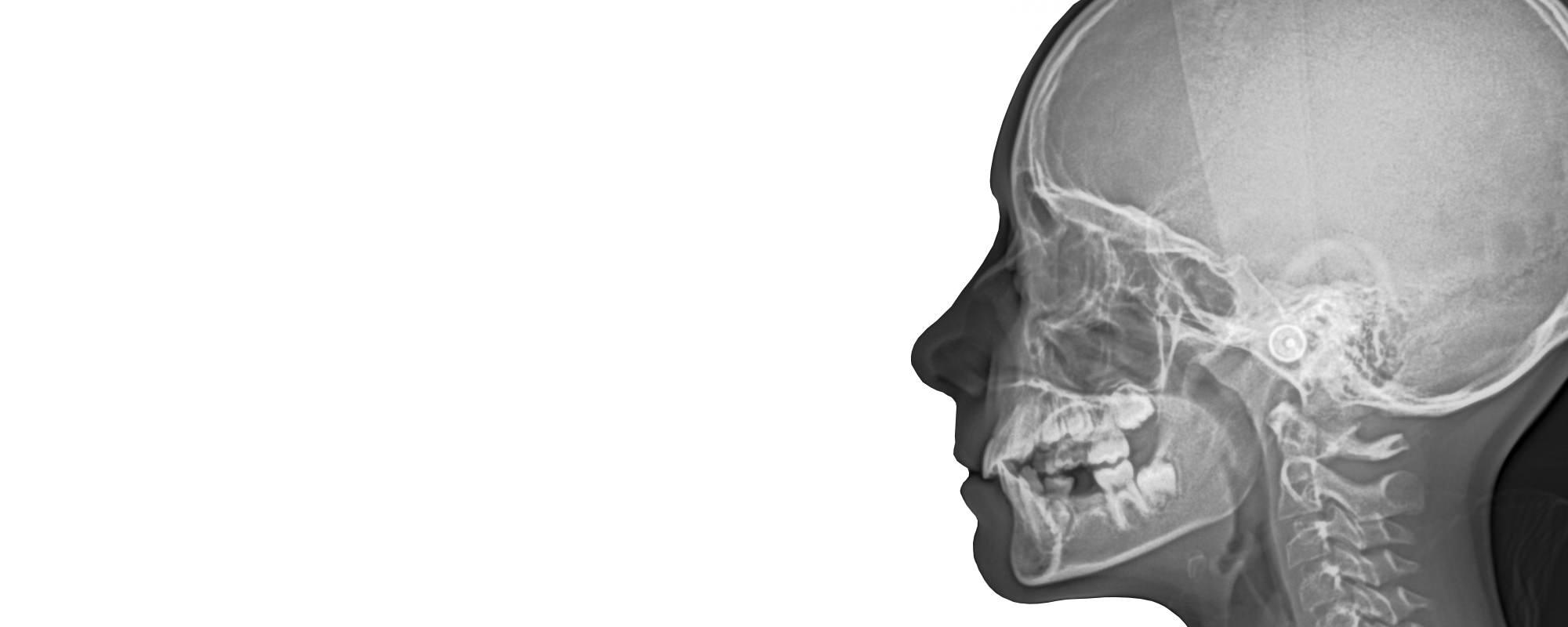 Radiografia 3D